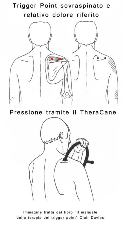 Dolore causato da Trigger point nel sovraspinato. Trattamento di massaggio con il Theracane