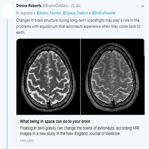 effetto gravita cervello, cervello astronauti